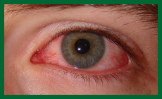 Зрение и фитопрепараты