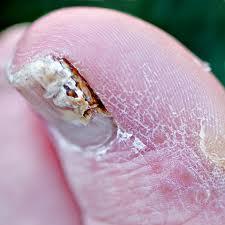 Внимание: грибок пальцев