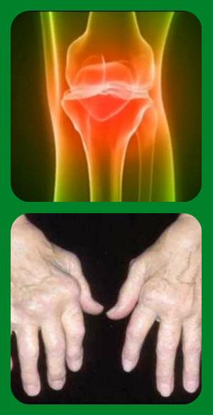 Заболевание ревматоидный артрит